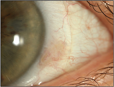 Figure 14. Scleral lens with microvault within the scleral landing zone, accommodating an area of elevation that was irritated by a standard edge profile.