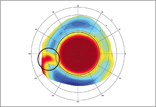 Figure 1. Scleral elevation map OS. The nasal red spot highlights the pinguecula.