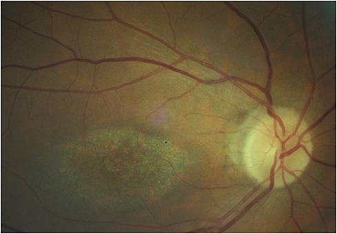 Figure 1. Perifoveal degerative changes in hydroxychloroquine macular toxicity.