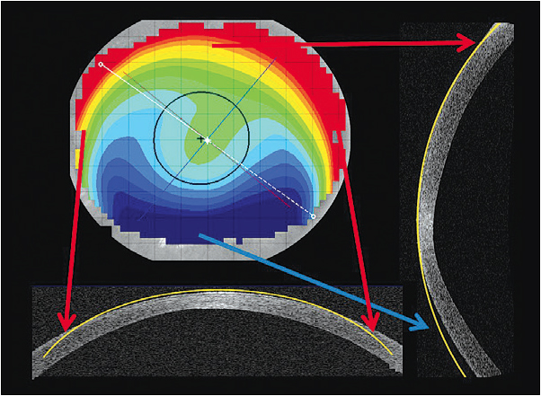 Figure 2. The elevation display map is created by the relationship of a theoretical sphere throughout the cornea.