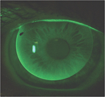 Figure 2. Shown is an optimally fitting GP aspheric multifocal.