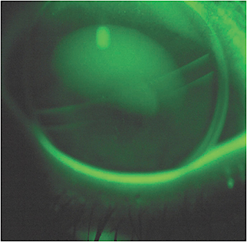 Figure 1. The position of a properly translating segmented trifocal design on down gaze.