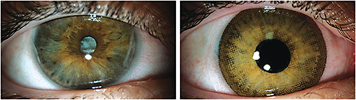 Figure 1. Clinical application of a custom computerized color match process can replicate a high-quality photograph (left) using pad printing to apply multiple layers of pigment to a contact lens to achieve a desired final look (right).