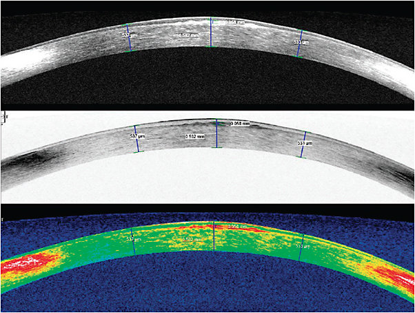 Figure 3. AS-OCT images of the patient's left eye vertical (180º) meridian.