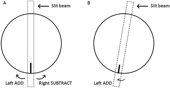 Figure 3. If the lens rotates to the left, add the amount of rotation to the refractive axis; if the lens rotates to the right, subtract the amount of rotation from the refractive axis (A). The soft toric contact lens is rotated to the left by 10º. To compensate for this rotation, add 10º to the refractive axis (B).