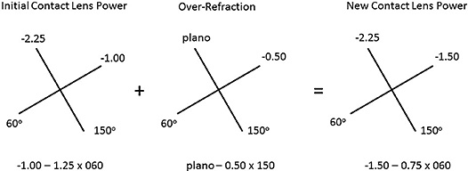 Figure 5. Optical crosses of the contact lens power and over-refraction to calculate the final contact lens power.