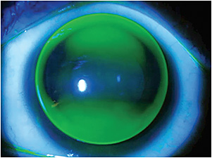 Figure 6. Spherical corneal GP contact lens on a toric cornea.