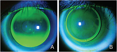 Figure 7. A spherical corneal GP contact lens on a patient who has a with-the-rule cornea (A). A toric-back-surface corneal GP contact lens on the same patient (B).