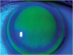 Figure 9. A steep-fitting toric corneal GP contact lens on a toric cornea.