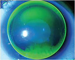 Figure 10. A toric corneal GP contact lens with insufficient back-surface toricity on a toric cornea.