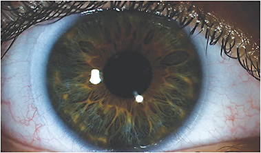 Figure 1. A poorly fit standard soft contact lens on a healthy ocular surface. See a video of this fit below.