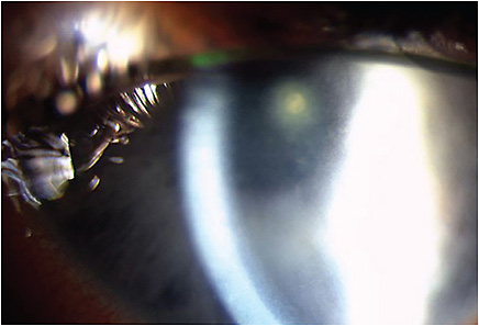 Figure 3. Bacterial keratitis secondary to Serratia marcescens. Note the stained paracentral ulcer, significant corneal edema, fine keratic precipitates, and diffuse injection.