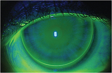 Figure 2. Initial fluorescein pattern of post-LASIK orthokeratology for the Case 2 patient.