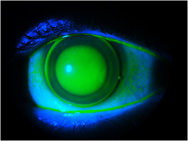 Figure 4. The steeper corneal GP to vault the scar.