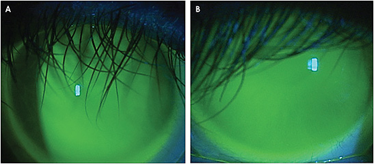 Figure 4. The scleral lens fitting relationship for the right (A) and left (B) eyes of the patient in Case 6.