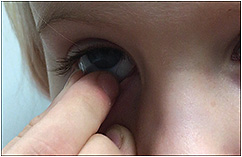Figure 2. Children as young as 4 years old can start learning how to handle contact lenses.