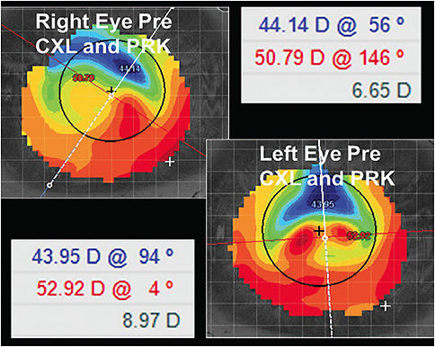 Figure 1. Right and left eye corneal topographies pre-CXL and PRK.