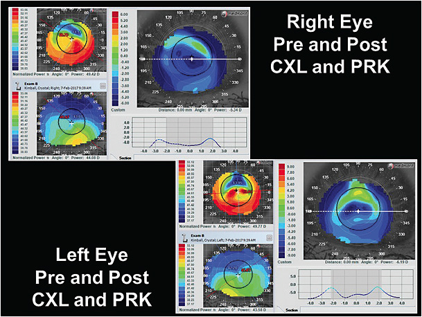 Figure 2. Right eye and left eye difference display maps pre- and post-CXL and PRK.