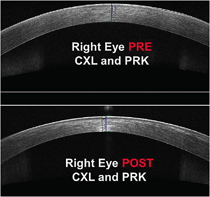Figure 3. Right eye optical coherence tomography pre-CXL and PRK (top) and post-CXL and PRK (bottom). Note the central corneal thinning of the post-surgical image.