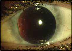 Figure 1. Our patient's left eye following multiple surgeries for iridocorneal endothelial syndrome (ICE).