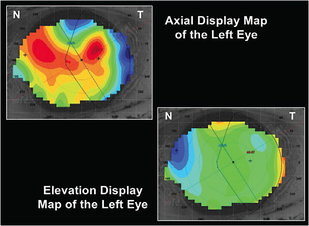 Figure 2. Axial and elevation display maps of the left eye at the time of contact lens fitting. Note the against-the-rule astigmatism with the axial display map 