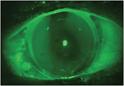 Figure 3. Bitoric corneal GP lens on the patient's left eye.