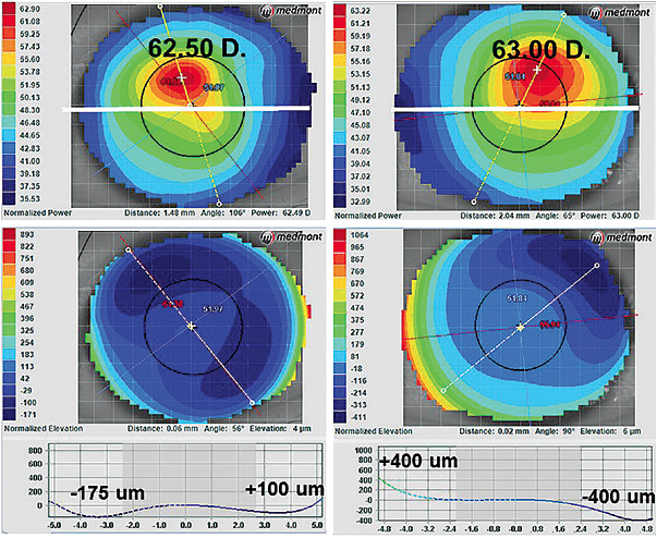 Figure 1. (Top) axial display (corneal power maps) of the right and left eyes, (bottom) elevation (corneal height maps).