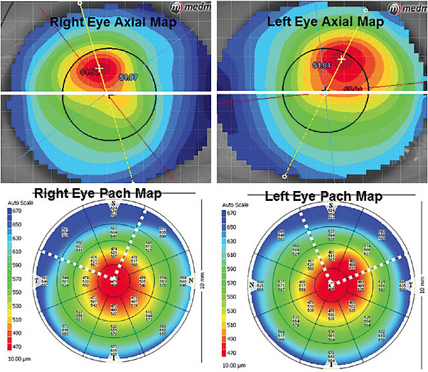 Figure 2. (Top) axial display maps showing the position of the greatest power change, (bottom) pachymetry maps of the right and left eyes.