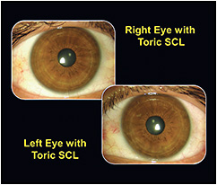 Figure 3. Patient wearing toric soft contact lenses.