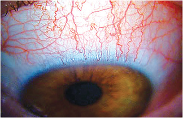 Figure 2. Acute red eye in a SiHy lens wearer.