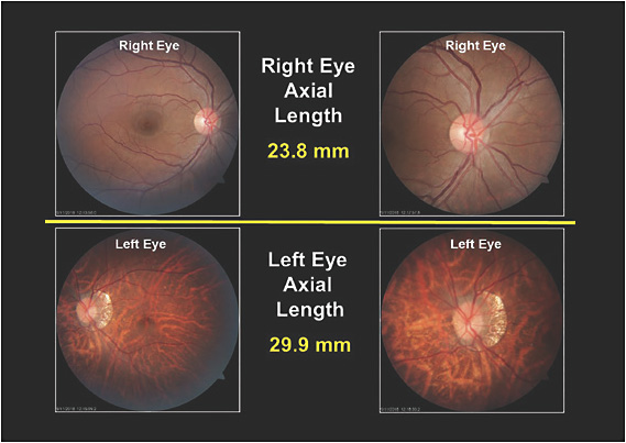 Figure 2. The retinal imaging and axial length measurements of the patient's right and left eyes.