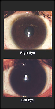 Figure 3. The soft lens fit of the right and left eyes.