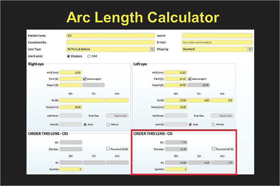 Figure 4. The online Arc Length Calculator for calculating the base curve, power, and diameter of any custom soft contact lens.