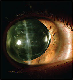 Figure 1. The cataract was replaced with an intraocular implant.