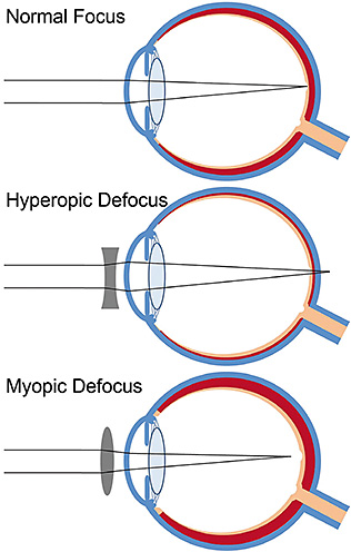 Figure 1. Schematic diagram illustrating the short-term changes in choroidal thickness (red tissue) that occur in the human eye in response to optical blur. With normal focus (top), the image is focused sharply on the retina, and the choroidal thickness remains stable. With hyperopic defocus (middle), the image is focused behind the retina, and a small-magnitude thinning of the choroid occurs. With myopic defocus, the image is focused in front of the retina, and the choroid thickens by a small amount. These choroidal changes move the retina in the direction of the defocused image plane. In animal models of myopia development, these choroidal responses precede longer-term changes in eye growth and refractive error development in response to optical blur.