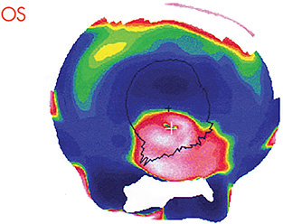 Figure 2. Topographical map of keratoconus OS.