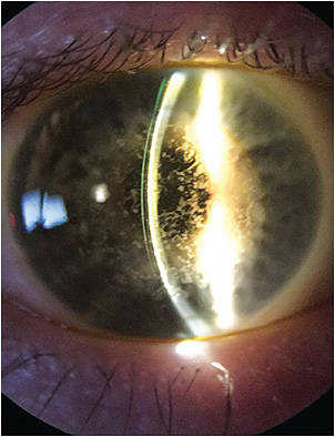 Figure 4. A scleral lens on an eye with granular corneal dystrophy.