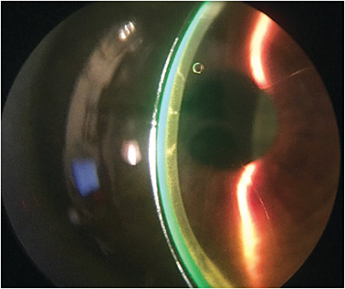 Figure 5. A scleral lens on an eye that has undergone radial keratotomy.