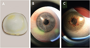 Figure 5. Common ocular prosthetic device complications and etiologies include deposits (normal wear and poor cleaning) (A); scratches (abrasive cleaning agents or dropping the device) (B); and delamination/cracks (excessive temperature changes, dropping the device, or old age of the device) (C).
