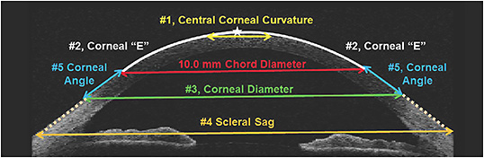 Figure 1. The five anatomical features that contribute to the sagittal height of the anterior eye.