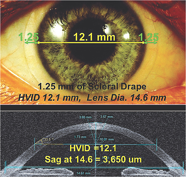 Figure 2. (Top) The corneal diameter plus 2.50mm equals the overall soft lens diameter. (Bottom) Our patient's OCT image showing a sagittal height at 14.6mm of 3,650 microns.