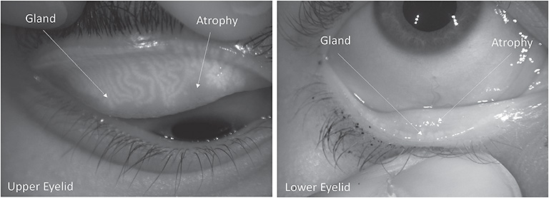 Figure 1. Meibography images. Left: Upper eyelid presents with a grade 1 meiboscore and gland tortuosity (gland deviation). Right: Lower eye presents with a grade 3 meiboscore.