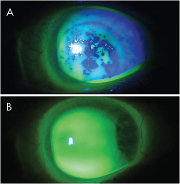 Figure 2. (A) Non-wetting scleral lens in a patient who has GVHD. (B) Surface wetting achieved with PEG-based coating.