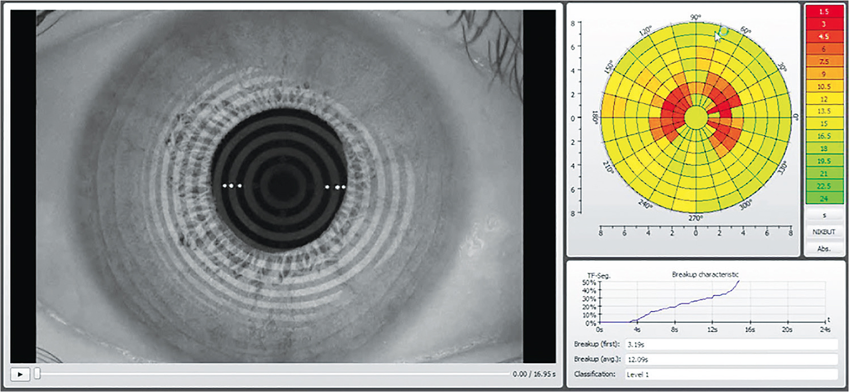 Figure 1. Non-invasive tear breakup analysis. This can be performed with and without the contact lens in place.
