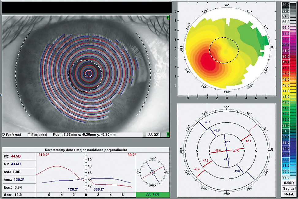 Figure 3. Corneal topography of keratoconus. Note the presentation of horizontal visible iris diameter, apex decentration, and eccentricity.