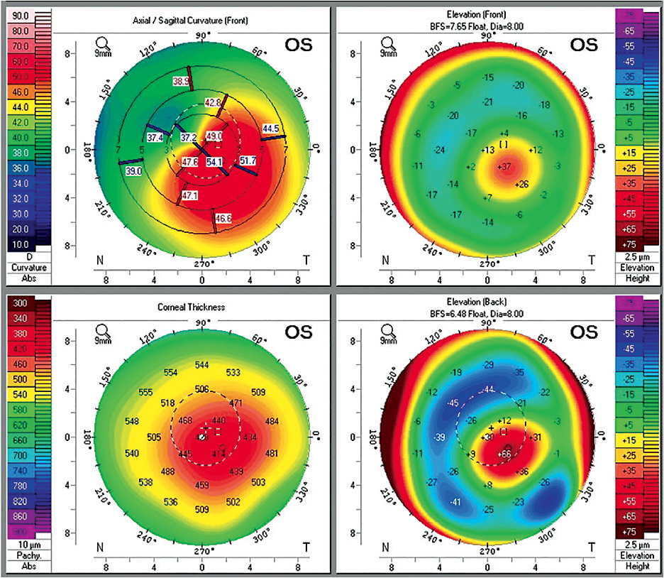 Figure 6. Tomographic elevation maps of keratoconus (upper and lower right). Posterior elevation maps are helpful in providing information about potential visual acuity that can be expected with contact lenses. An increase in elevation is associated with degradation in visual acuity.