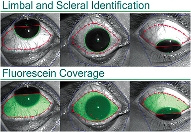Figure 8. Scleral topography allows for imaging of both the corneal and scleral contour. This information is valuable for initial scleral contact lens selection and troubleshooting lens design.