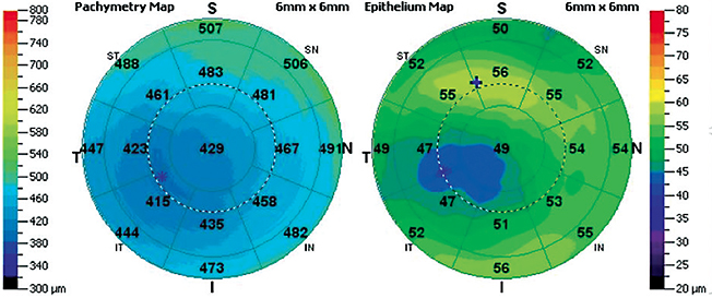 FIgure 10. OCT pachymetry maps of keratoconus. The thinning of the epithelium matches location with apical thinning.