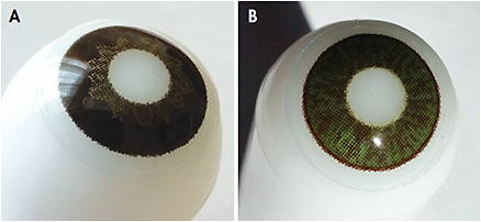 Figure 4. A custom brown prosthetic lens (A) and a custom green prosthetic lens (B).