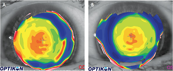 Figure 3. (A) Topography over a near-center multifocal lens on a patient's right eye showing temporal decentration of the optics relative to the patient's line of sight. (B) Topography over a near-center multifocal lens on a patient's left eye showing the desired centration of the optics relative to the line of sight.